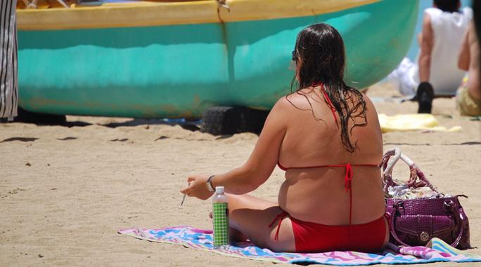 【医療】日焼けは火傷と認識を!海で起きた火傷のケアや対処法をご紹介